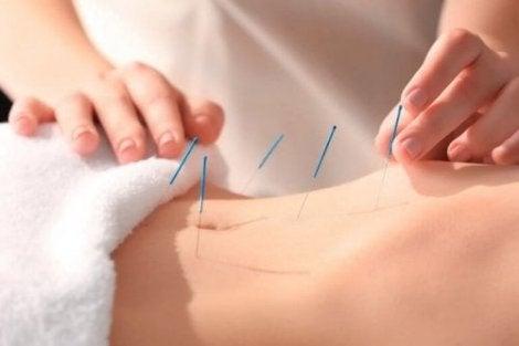 Acupunctuur behandeling buik